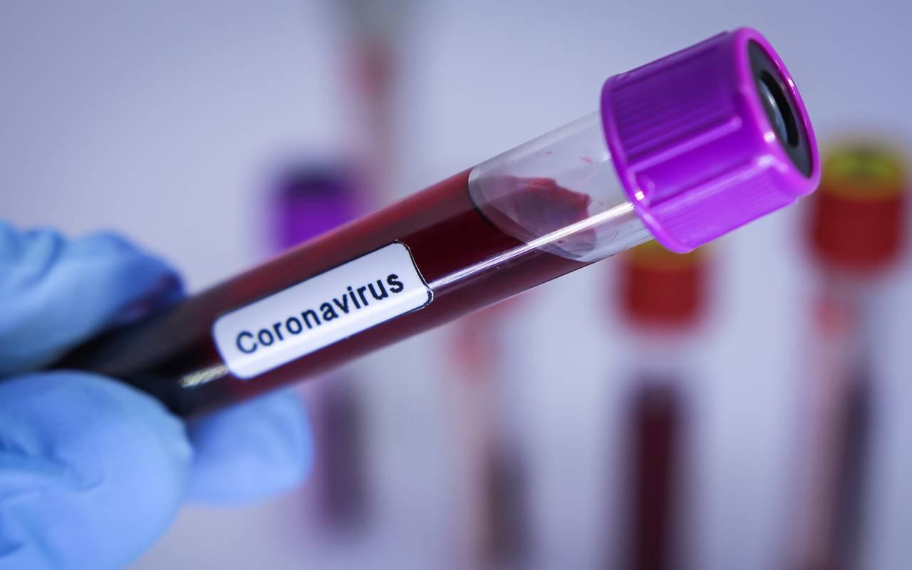 Teste de coronavirus
