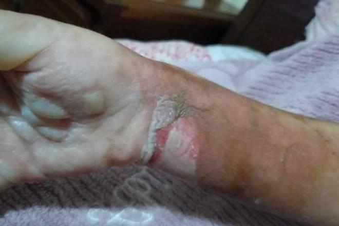 Braço queimado da criança após explosão de celular - Reprodução