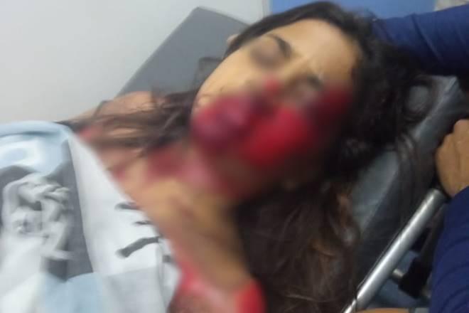 A vítima, uma garota de 12 anos, foi socorrida para o Hospital Regional da Mata — © Cortesia
