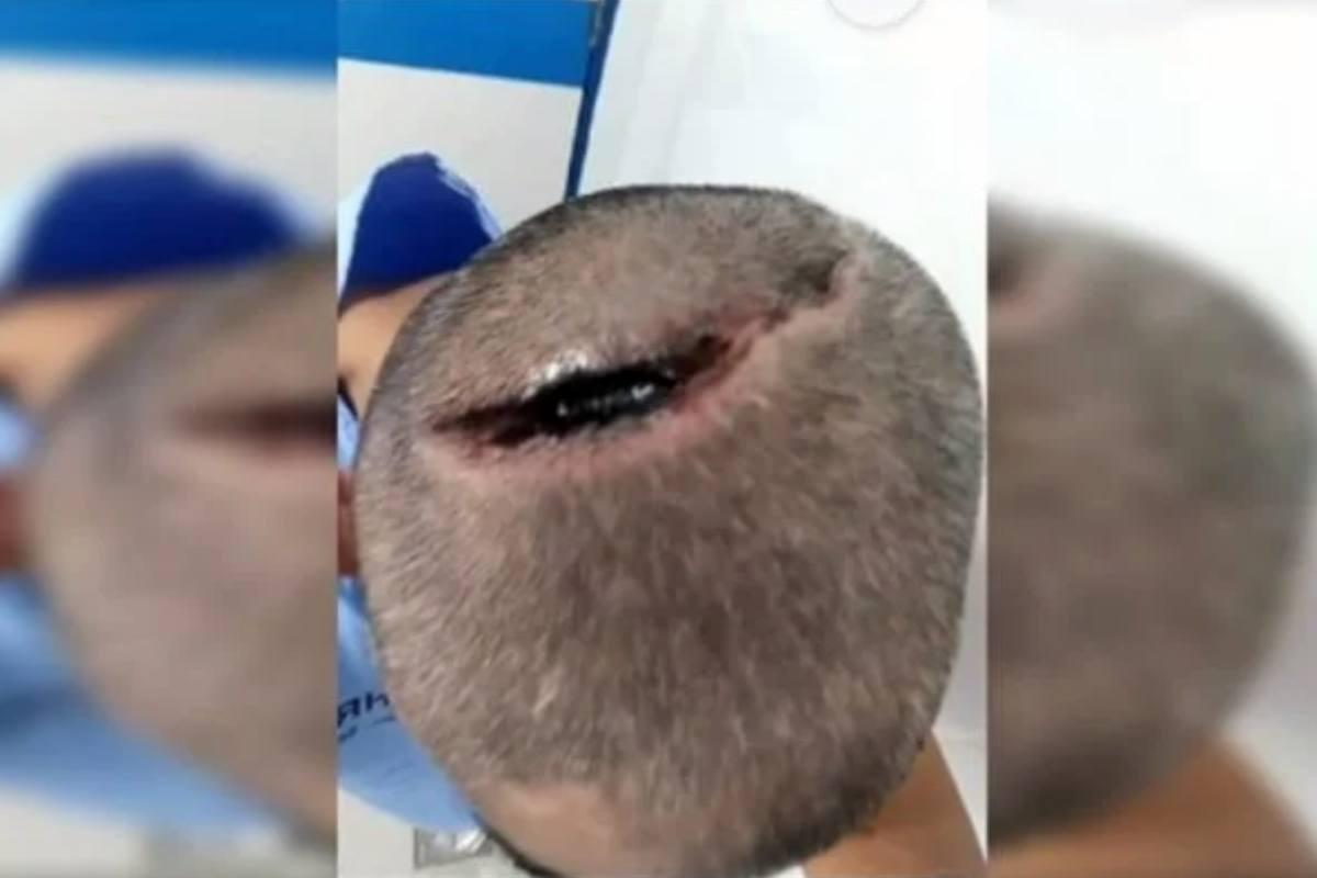 O paciente não sabe como ficou com a cabeça rachada | © Reprodução