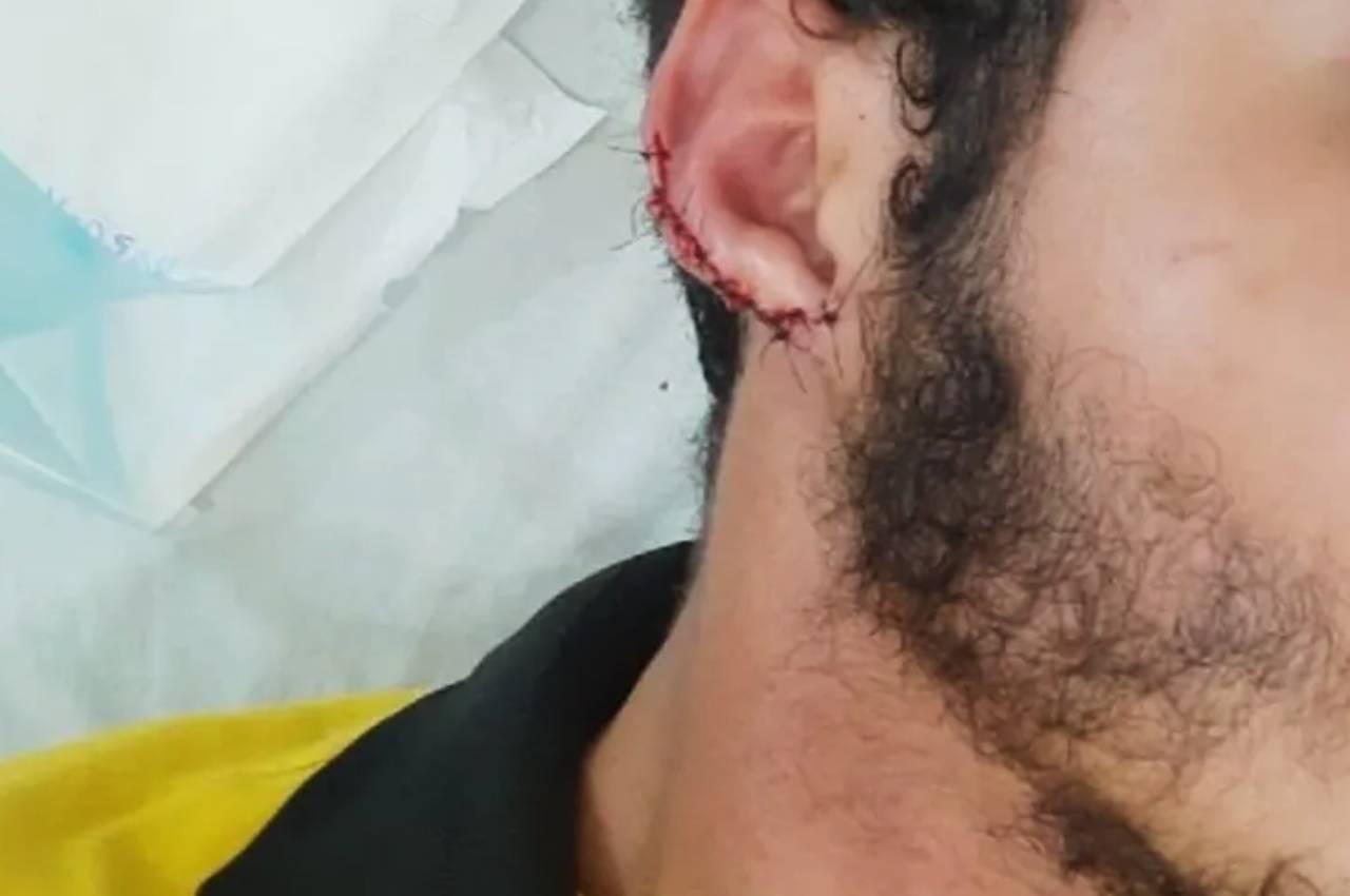 O funcionário da lanchonete teve parte da orelha arrancada | © Reprodução